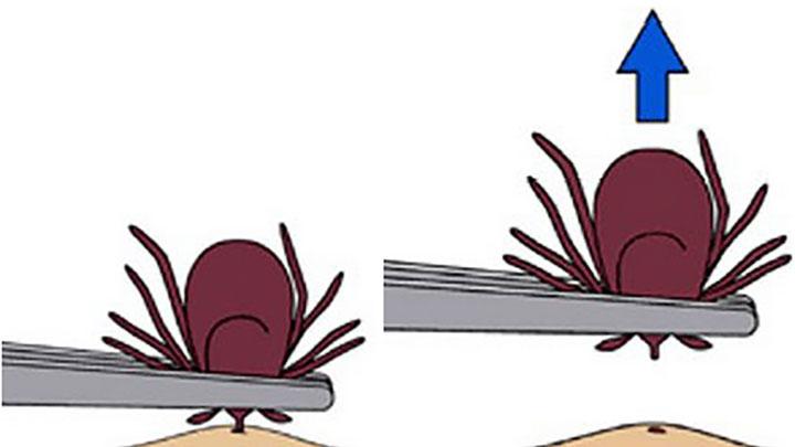 how to remove ticks